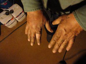 Swollen hand injury